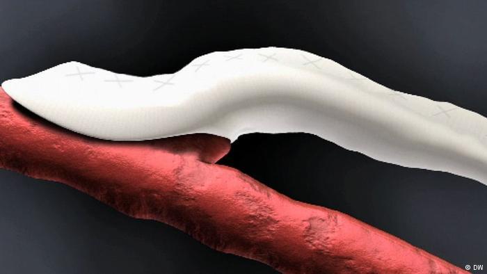 3-pembuluh-darah