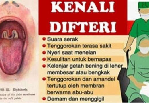Dinkes Klaim Rembang Bebas Difteri Sejak 2007